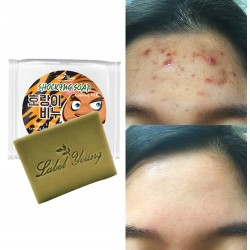 3 Acne Soap Bar Oily Skin Pimple Care Cleansing Blemish Treatment Centella Aid